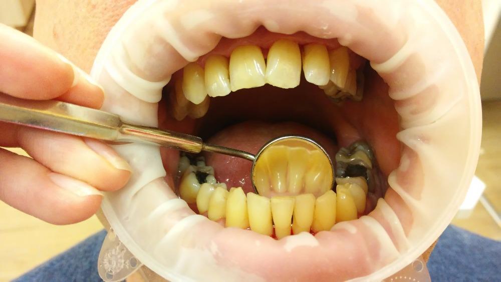 Nemoc obvykle probíhá několik let bez bolestí, a proto také v prvních stádiích nebývá ošetřena. Neléčená parodontitida je nejčastější příčinou ztráty zubů.