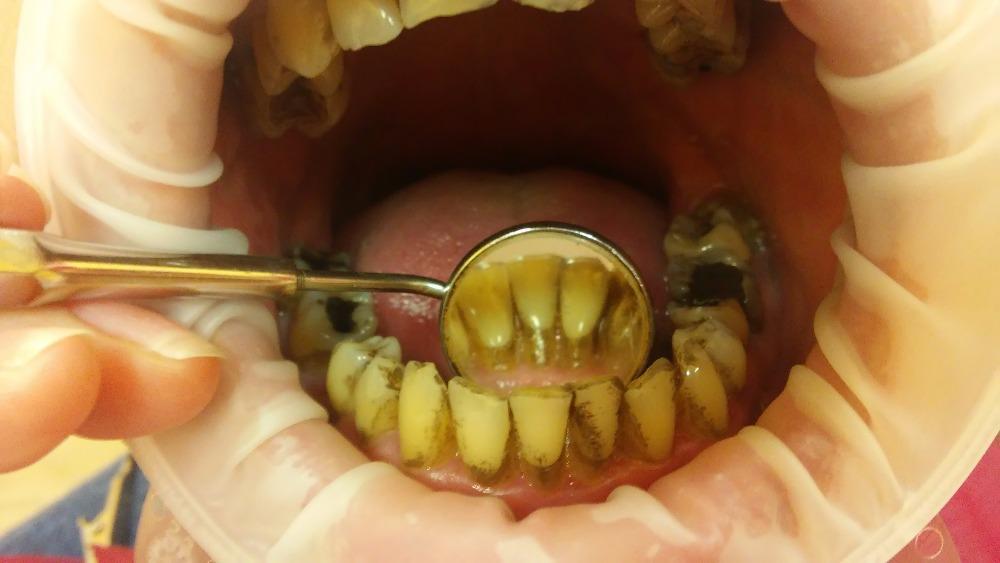 Je kromě zubního kazu jednou z nejčastějších nemocí dutiny ústní. Odhaduje se, že až 80% lidí trpí paradentózou.