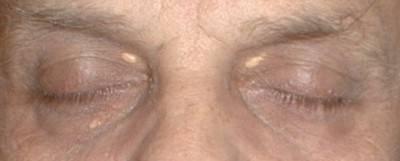 bílé zatvrdlé kuličky na obličeji nebo kolem očí, popřípadě hrudkami v bělmu - zvýšená hladina cholesterolu