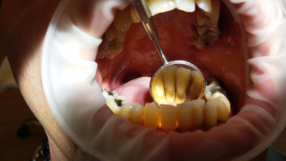 Prvním příznakem onemocnění paradentózou je zánět dásní, který způsobují bakterie rozkládající pojivovou tkáň.