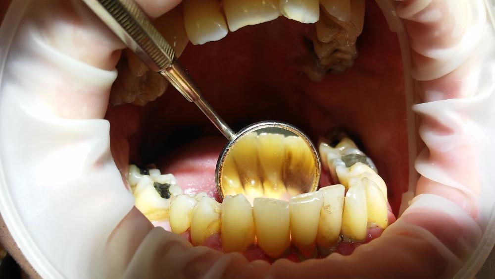 1. stadium se projevuje mírným otokem a zarudnutím. Doprovází ho občasné krvácení z dásní především při jídle a čištění zubů. Může se objevit nepříjemný pocit a zápach z úst