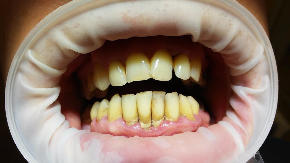 potom se rozšiřují i na závěsný aparát, který plní funkci pevného ukotvení zubu. Zubní plak (tenká vrstvička, která obsahuje škodlivé bakterie