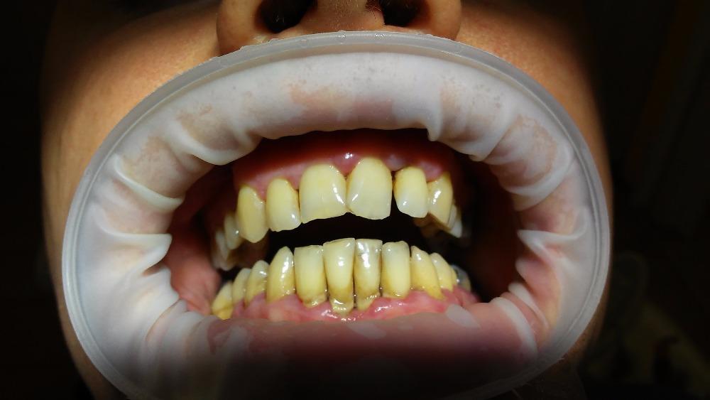 je důsledkem špatné ústní hygieny a poškozuje zubní sklovinu, vzniká zubní kaz.
