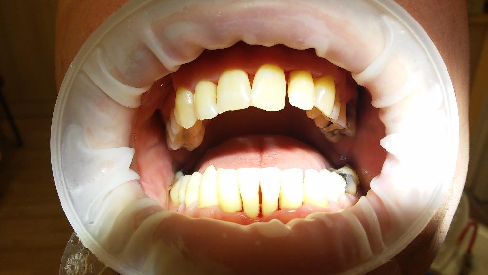 Velmi důležité je správné čištění zubů, abyste o své zuby nepřišly a nebyly nuceni si nechat udělat zubní implantáty. Chrup by se měl čistit nejméně 2x denně,