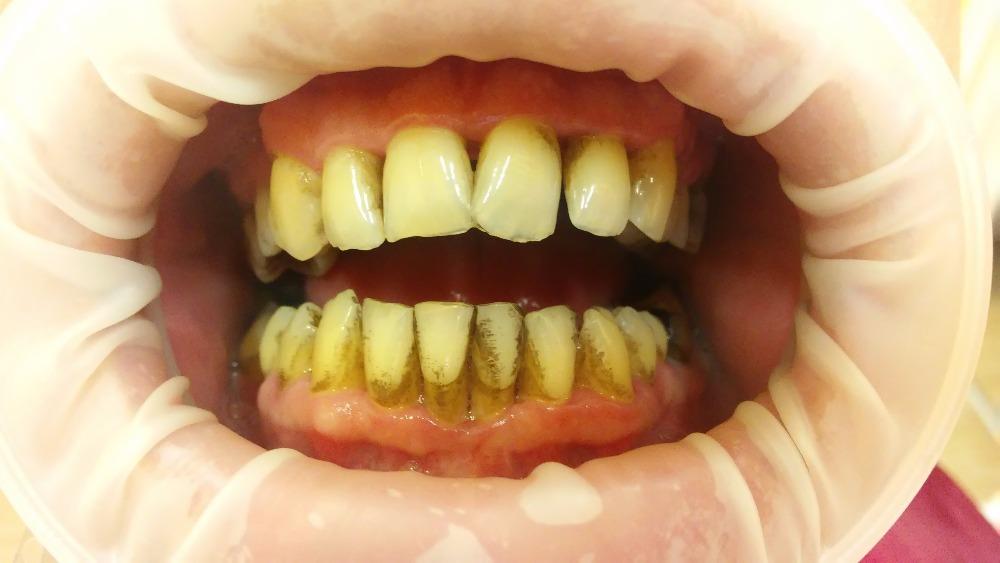 V tomto stádiu je prevence i léčba nejúčinnější. Proto by každý při jakémkoliv příznaku měl ihned navštívit zubního lékaře.